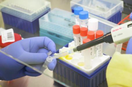 Coronavirus en La Araucanía: Dos fallecidos y 183 nuevos contagios de COVID-19