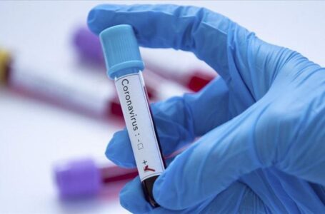 En La Araucanía hoy martes se informan 394 nuevos casos de COVID-19